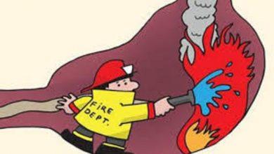 أسباب-حرقة-المعدة
