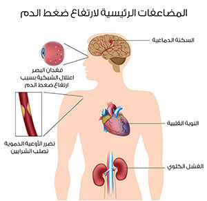أعراض-ارتفاع-ضغط-الدم