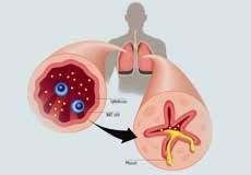 أعراض-نقص-المغنيسيوم-عند-الأطفال