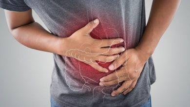 صورة علاج ألم المعدة