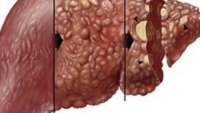 صورة علاج تليف الكبد