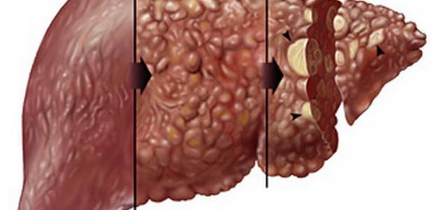علاج تليف الكبد