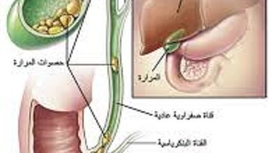 Photo of حصوات المرارة وعلاجها بالمنظار