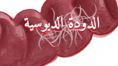 Photo of علاج الديدان الدبوسية