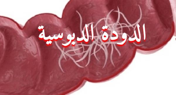 علاج الديدان الدبوسية