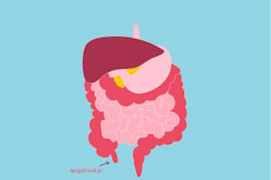 ما-هي-أعراض-الزائدة-الدودية