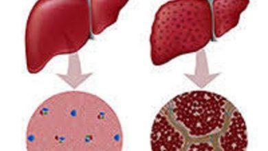 Photo of مرض الكبد الوبائي 5 أنواع