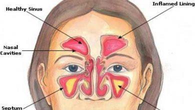 أعراض-حساسية-الأنف