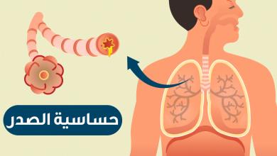 Photo of أعراض حساسية الصدر
