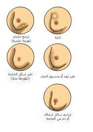 أعراض-سرطان-الثدى