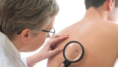 أعراض-سرطان-الجلد