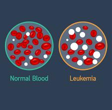 Photo of أعراض سرطان الدم و الأسباب
