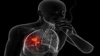 Photo of أعراض سرطان الرئة