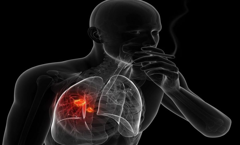أعراض-سرطان-الرئة