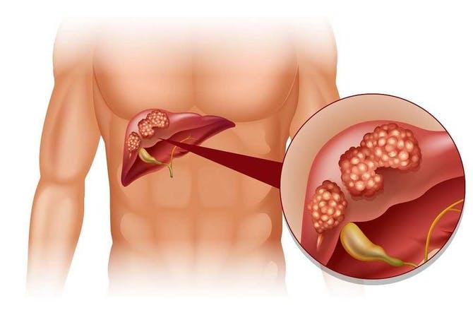 أعراض-سرطان-الكبد
