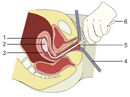 أمراض-تسبب-الإجهاض