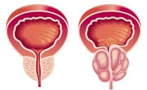علاج-تضخم-البروستاتا
