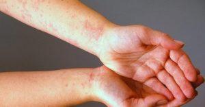علاج-حساسية-الجلد