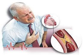 انسداد الشريان التاجي (أسباب النوبة القلبية)