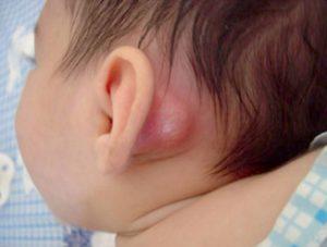 التهاب الخشاء