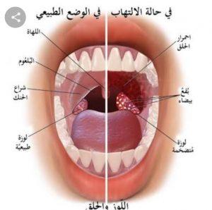 التهاب الحلق.