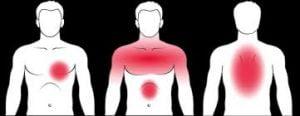 أعراض النوبة القلبية (ألم في الصدر وأعلى البطن)