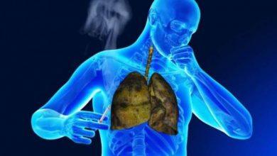 Photo of أمراض الجهاز التنفسي