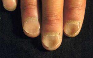 ضعف وهشاشة الأظافر وتشبه الملعقة من أعراض فقر الدم بسبب نقص الحديد