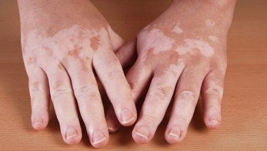 Photo of مرض البهاق