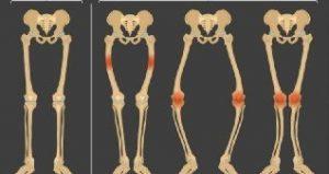 تقوس الساقين أحد أعراض نقص فيتامين د عند الأطفال