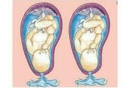 أعراض الولادة الطبيعية (تمزق الكيس الأمنيوسي)