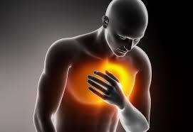 أعراض حرقة المعدة