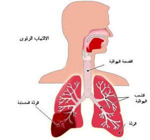 مرض الالتهاب الرئوي