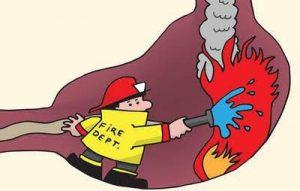 علاج حرقة المعدة