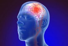 Photo of مرض تصلب شرايين المخ وعلاجه
