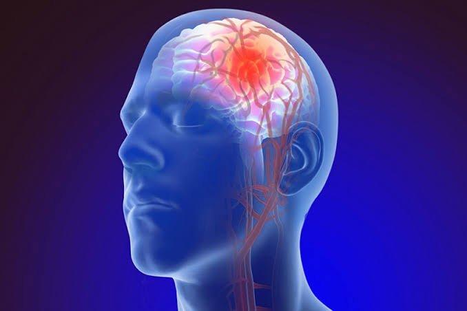 تصلب شرايين المخ