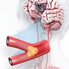 أسباب تصلب شرايين المخ