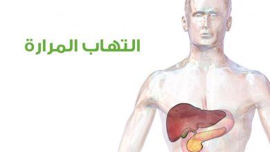 التهاب المرارة الحاد