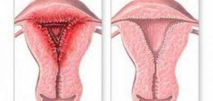 الفرق بين الرحم الطبيعي والرحم المصاب