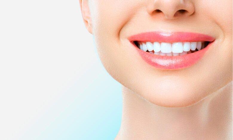 أنواع عمليات تجميل الاسنان